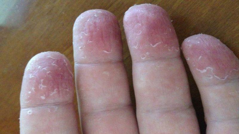 Ciuperca la unghii: simptome, diagnostic, tratament